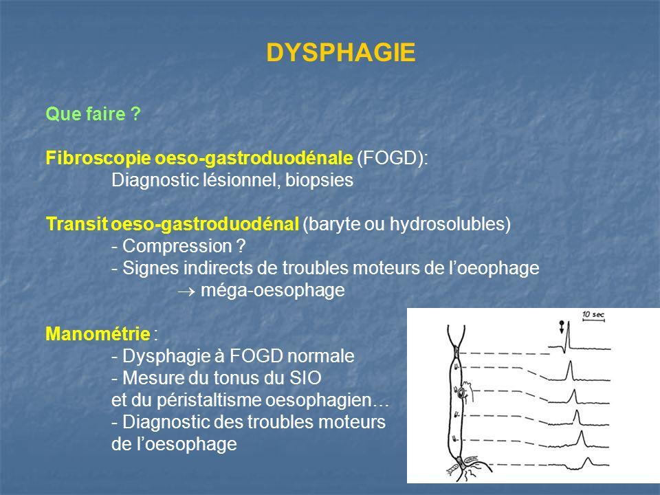 DYSPHAGIE Que faire Fibroscopie oeso-gastroduodénale (FOGD):