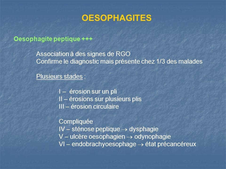 OESOPHAGITES Oesophagite peptique +++ Association à des signes de RGO