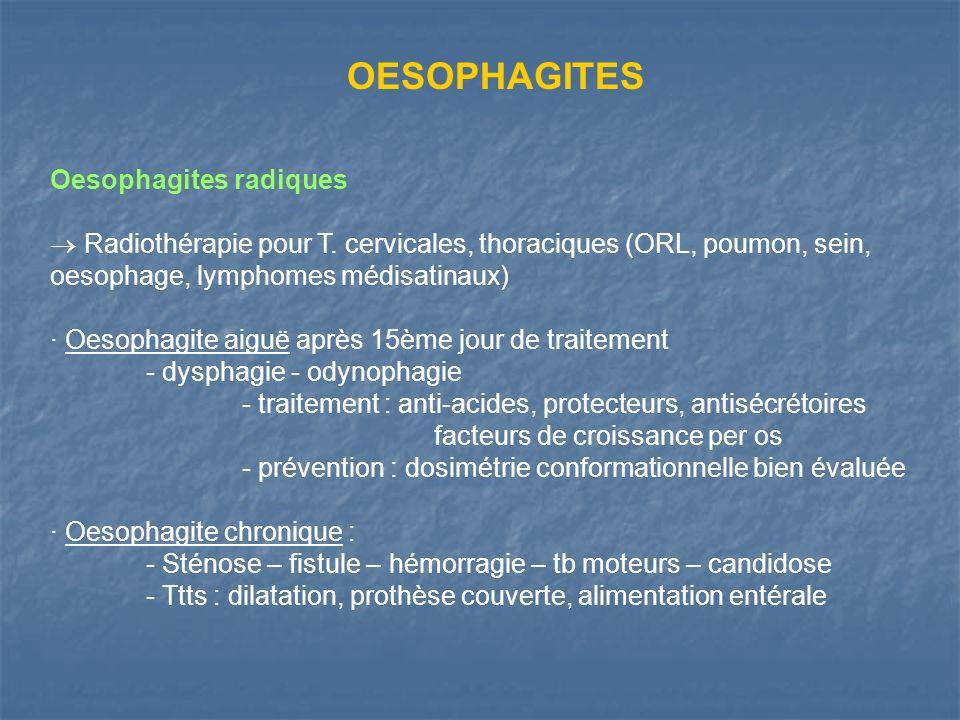 OESOPHAGITES Oesophagites radiques