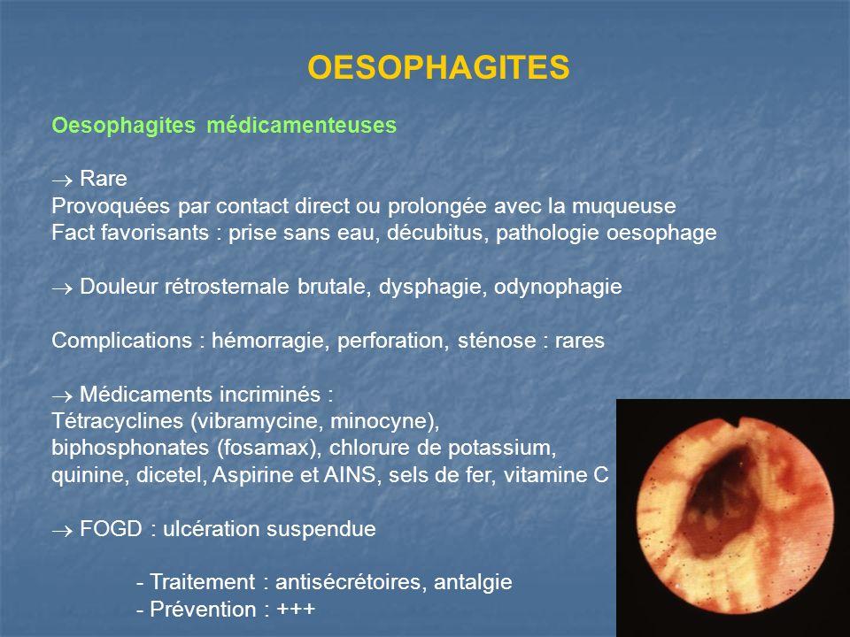 OESOPHAGITES Oesophagites médicamenteuses  Rare