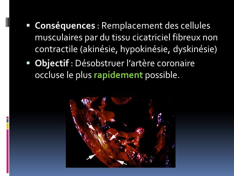 Conséquences : Remplacement des cellules musculaires par du tissu cicatriciel fibreux non contractile (akinésie, hypokinésie, dyskinésie)
