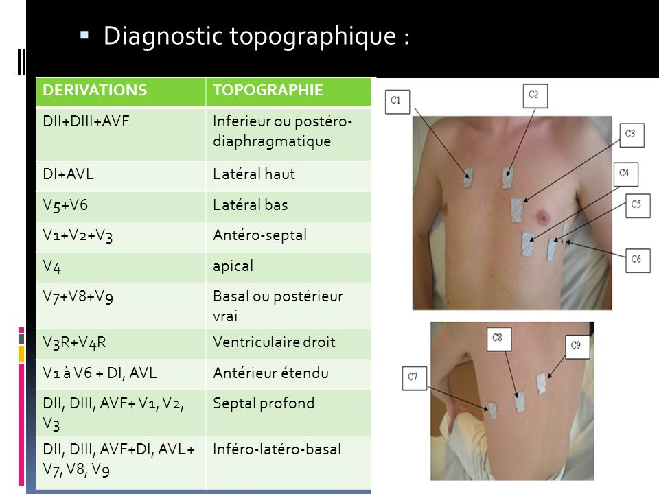 Diagnostic topographique :