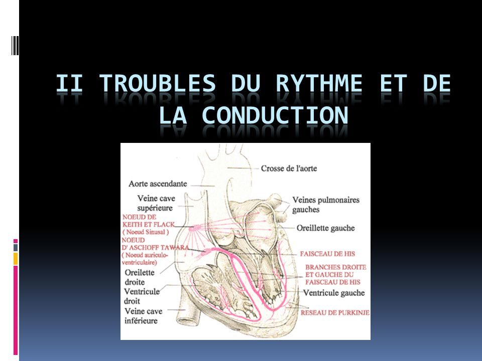 II TROUBLES DU RYTHME ET DE LA CONDUCTION