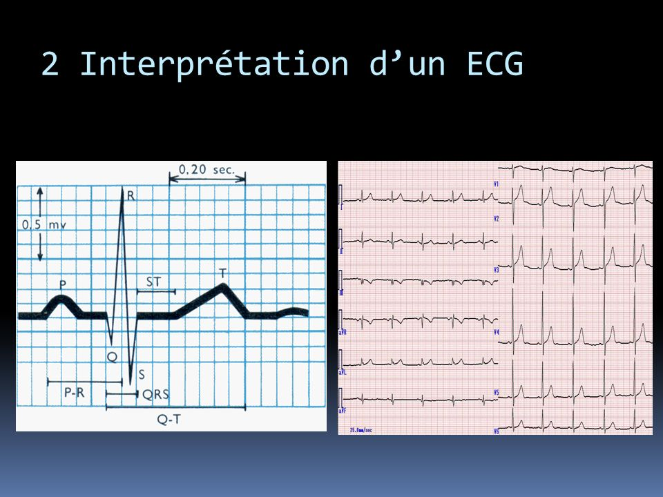 2 Interprétation d'un ECG