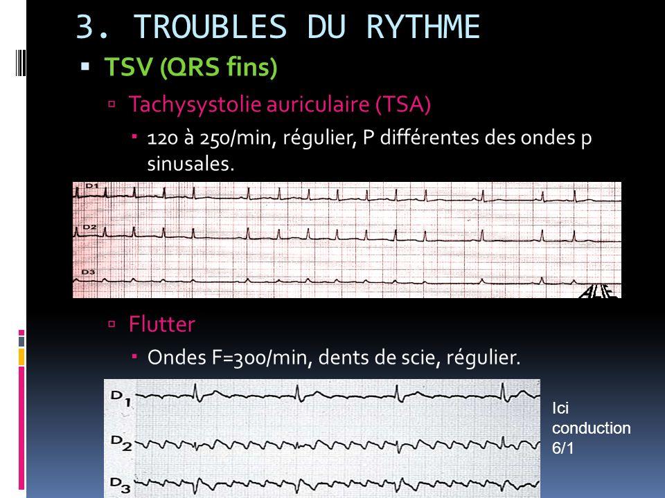 3. TROUBLES DU RYTHME TSV (QRS fins) Tachysystolie auriculaire (TSA)