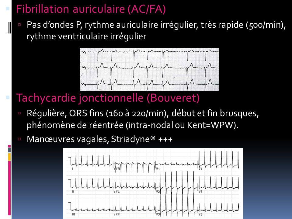 Fibrillation auriculaire (AC/FA)