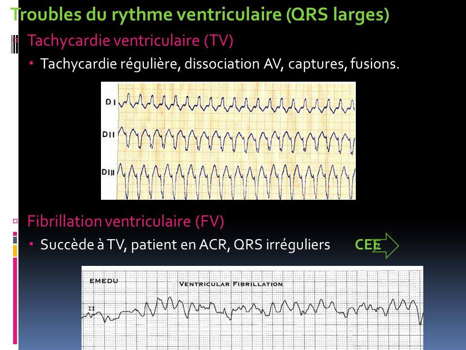 Troubles du rythme ventriculaire (QRS larges)