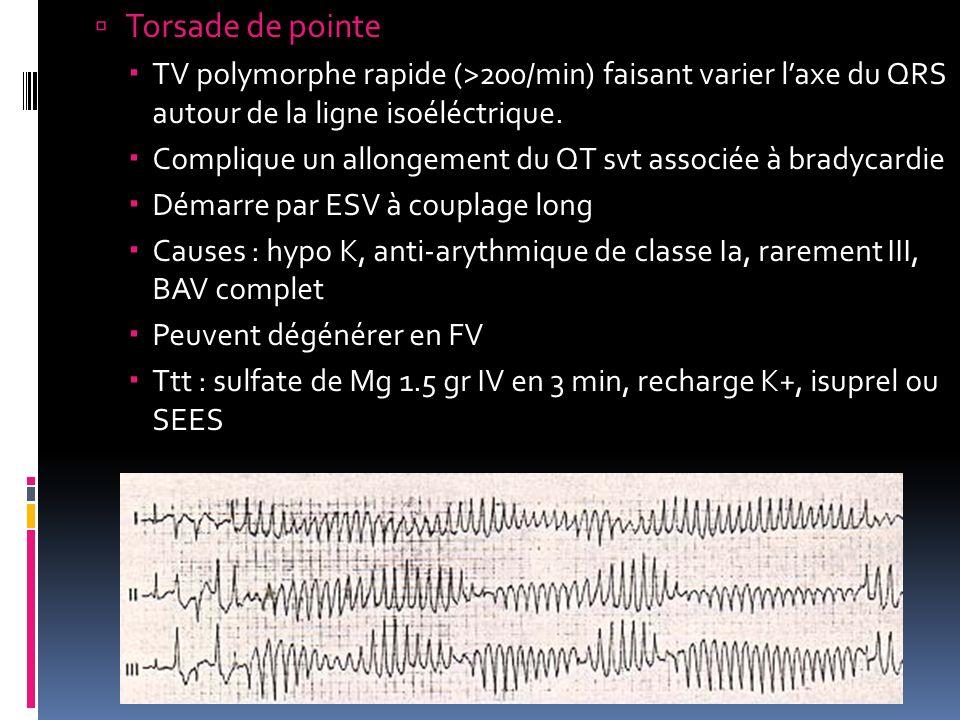 Torsade de pointe TV polymorphe rapide (>200/min) faisant varier l'axe du QRS autour de la ligne isoéléctrique.