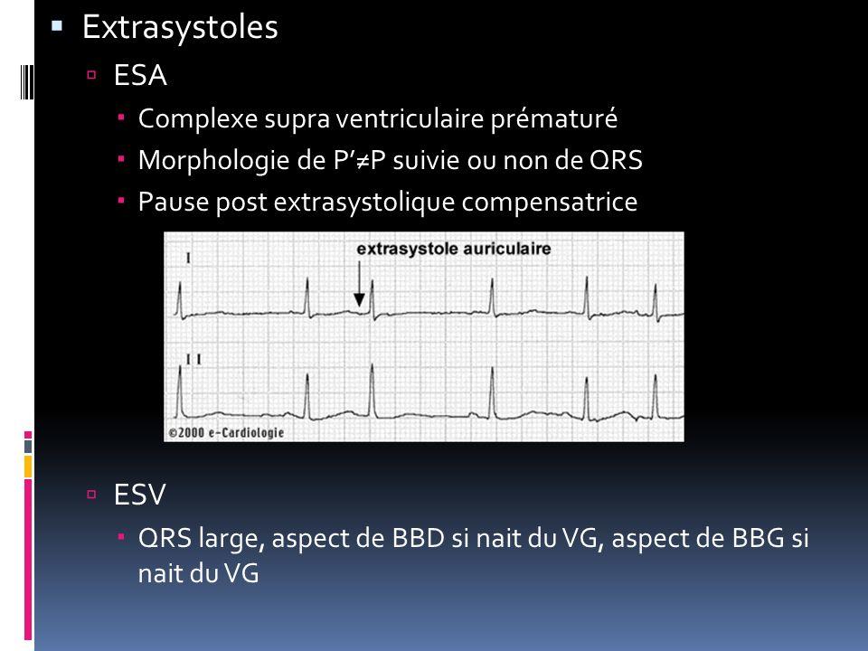Extrasystoles ESA ESV Complexe supra ventriculaire prématuré
