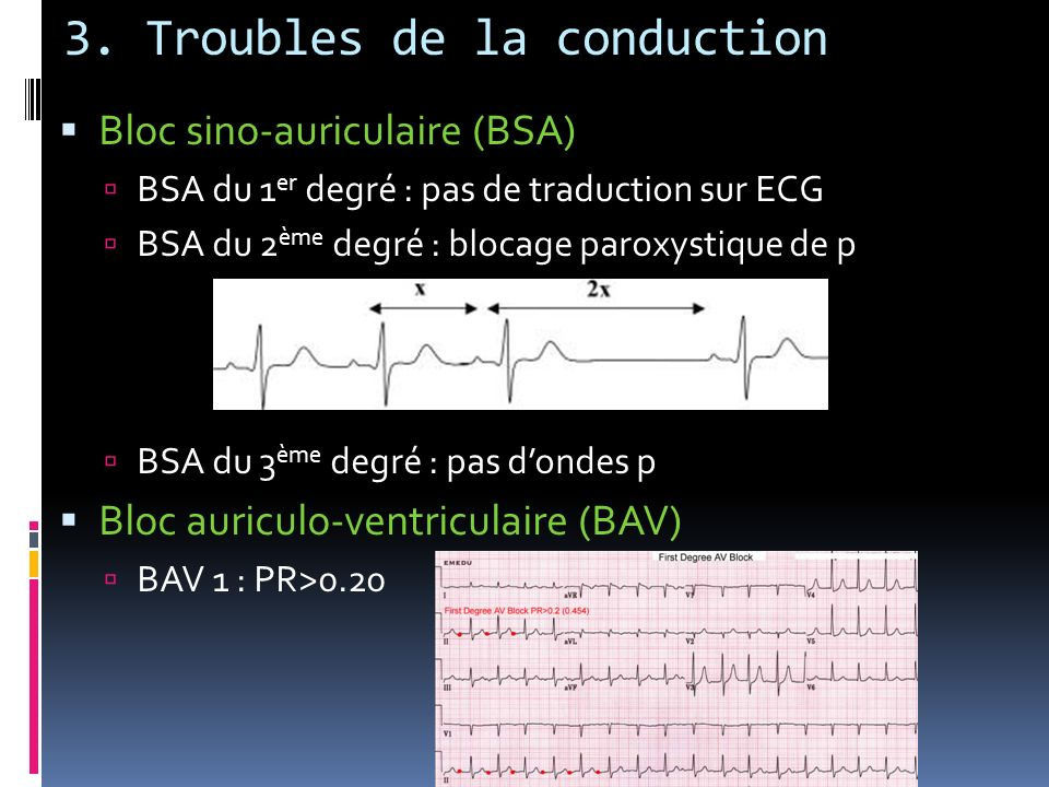 3. Troubles de la conduction