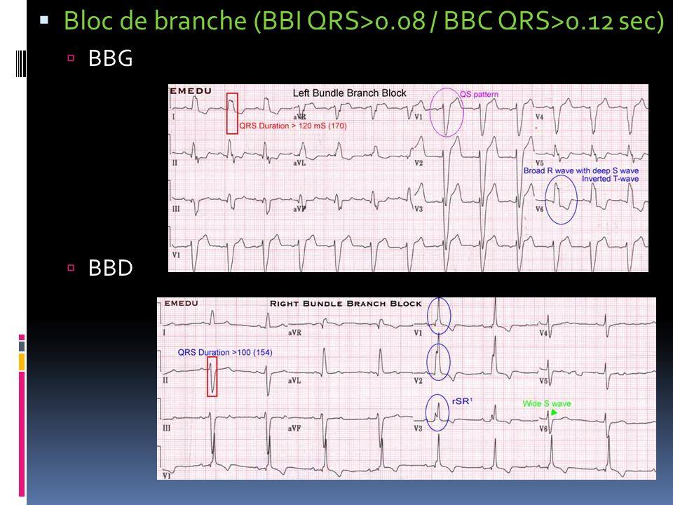 Bloc de branche (BBI QRS>0.08 / BBC QRS>0.12 sec)