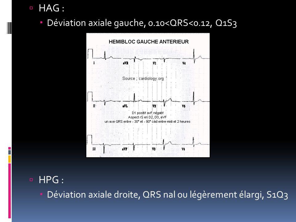 HAG : HPG : Déviation axiale gauche, 0.10<QRS<0.12, Q1S3