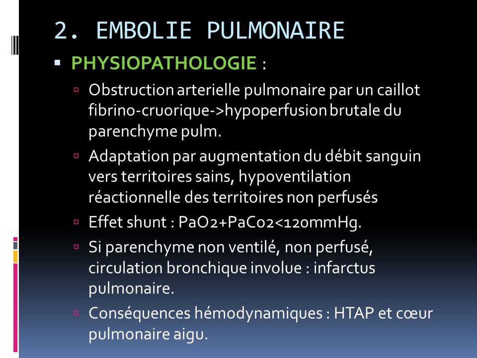 2. EMBOLIE PULMONAIRE PHYSIOPATHOLOGIE :
