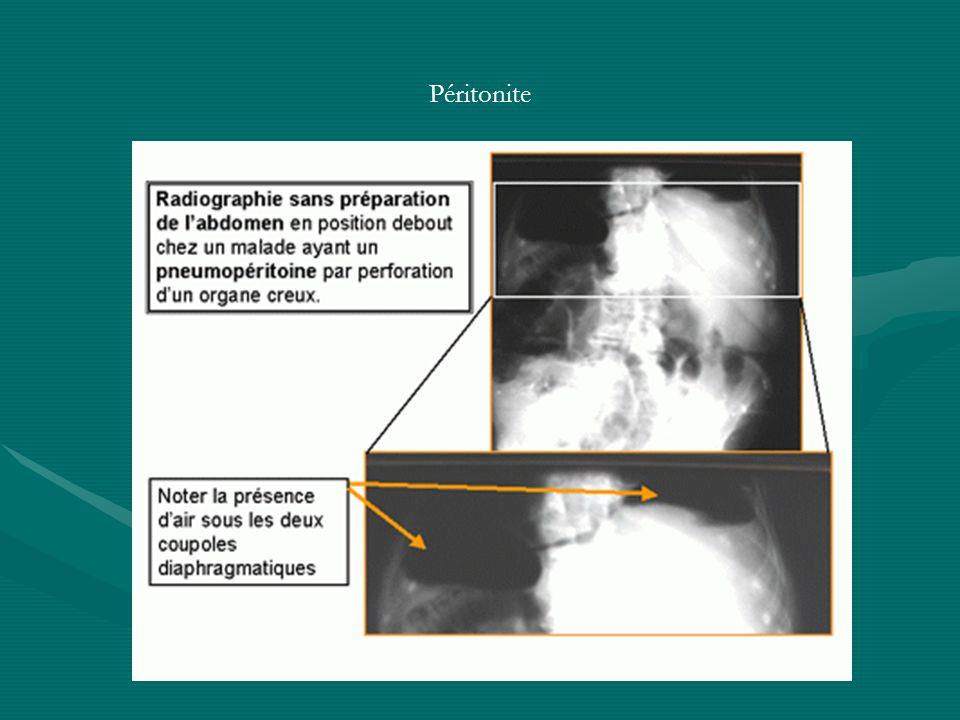 Péritonite