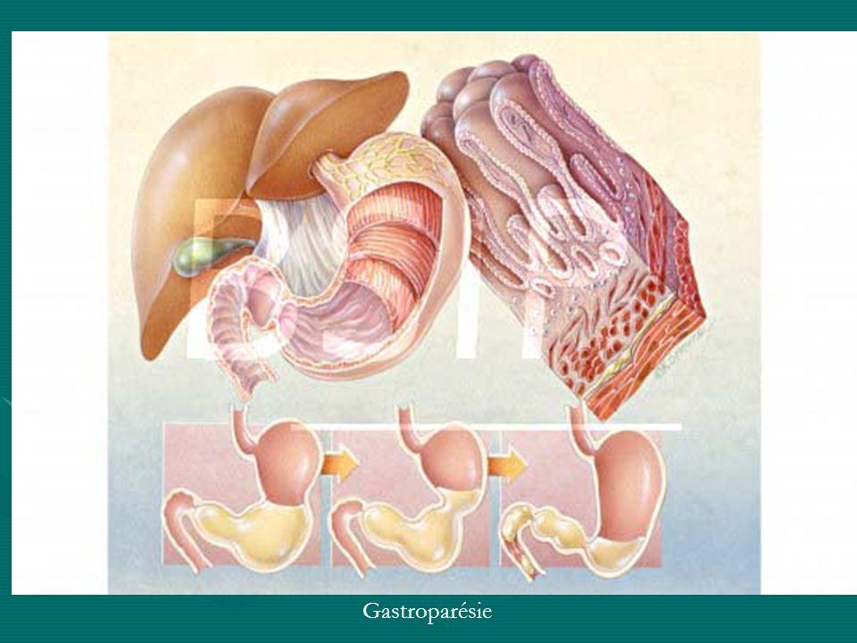 Gastroparésie