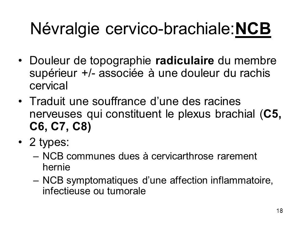 Névralgie cervico-brachiale:NCB