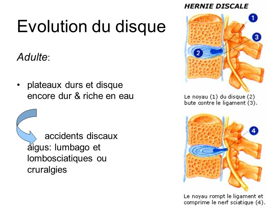 Evolution du disque Adulte: