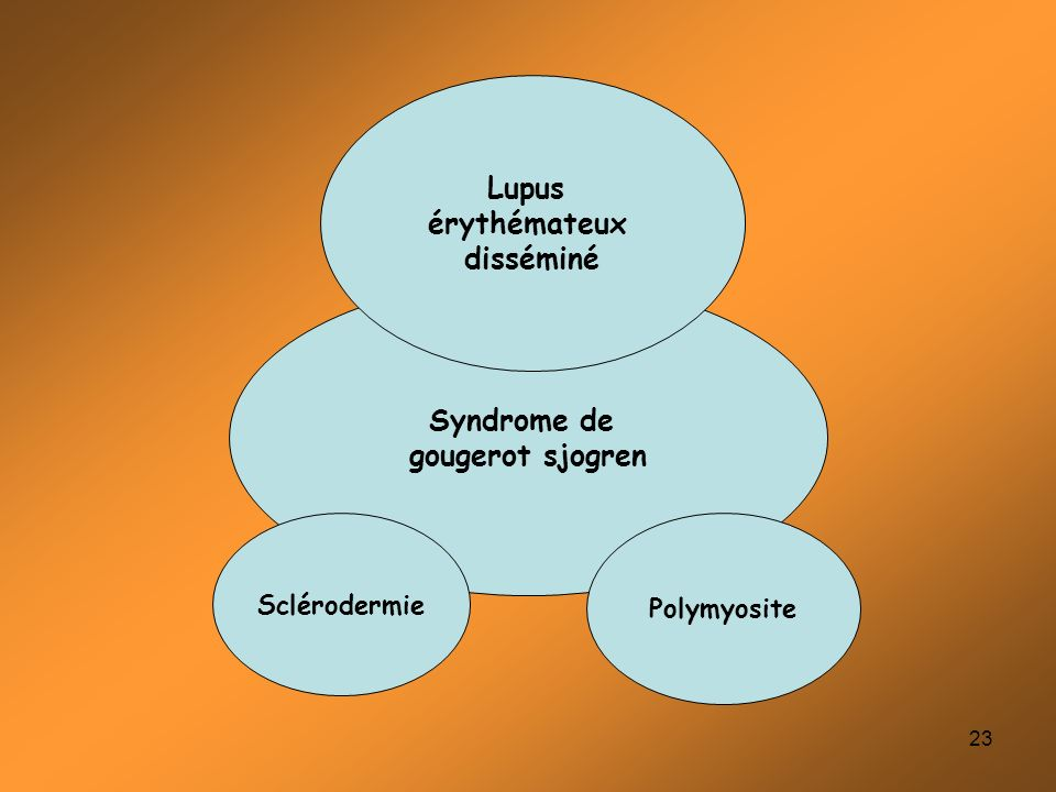 Syndrome de gougerot sjogren Lupus érythémateux disséminé