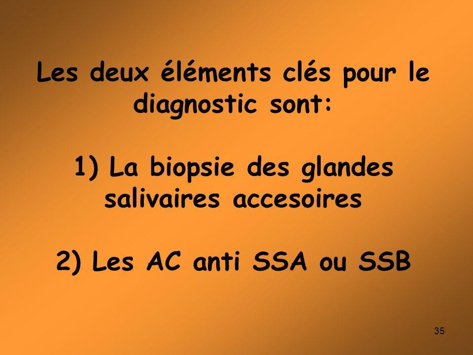 Les deux éléments clés pour le diagnostic sont: 1) La biopsie des glandes salivaires accesoires 2) Les AC anti SSA ou SSB