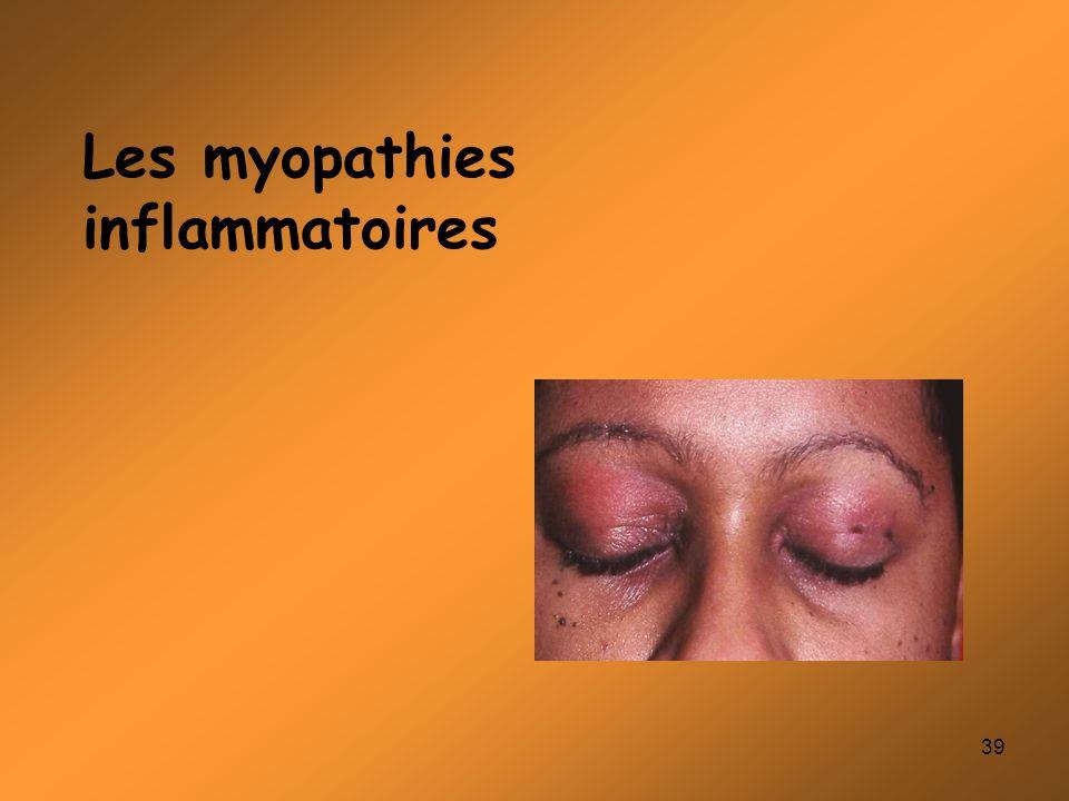 Les myopathies inflammatoires