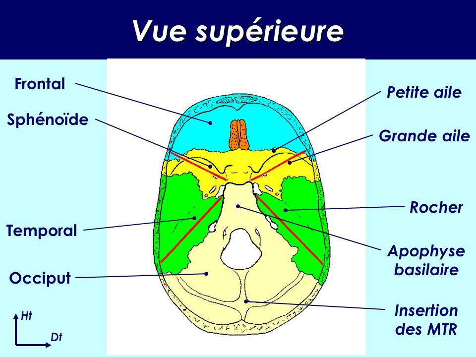 Vue supérieure Frontal Petite aile Sphénoïde Grande aile Rocher