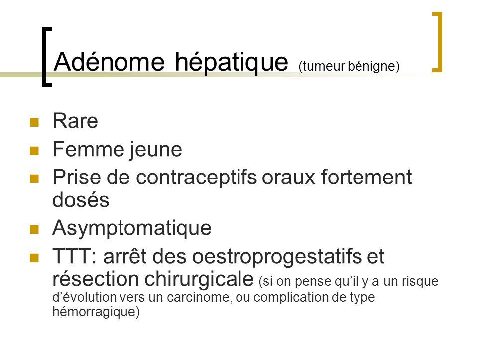 Adénome hépatique (tumeur bénigne)