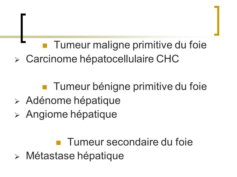 Tumeur maligne primitive du foie Carcinome hépatocellulaire CHC