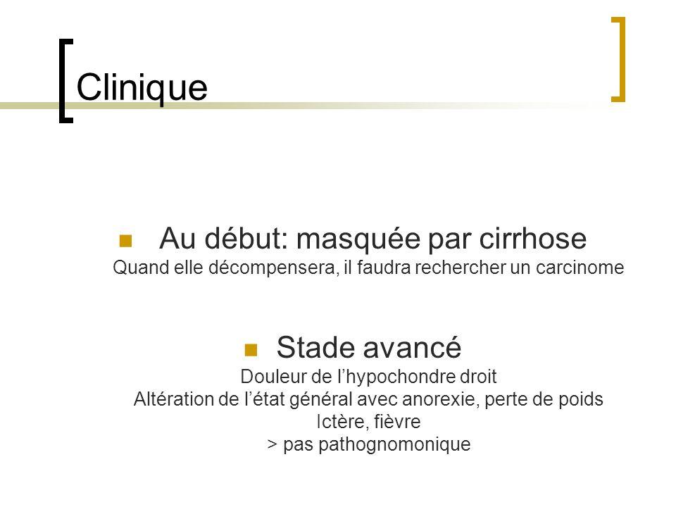 Clinique Au début: masquée par cirrhose Quand elle décompensera, il faudra rechercher un carcinome.