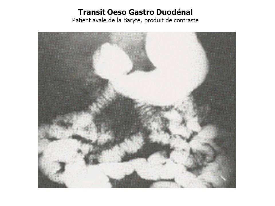 Transit Oeso Gastro Duodénal Patient avale de la Baryte, produit de contraste