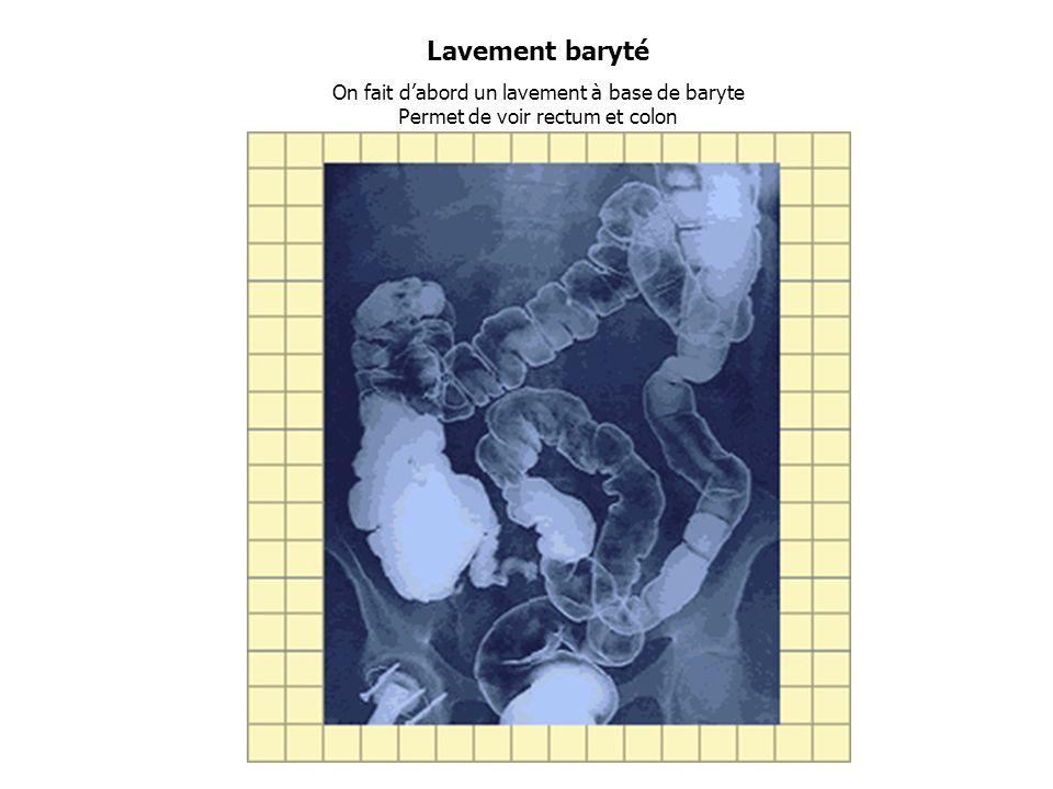 Lavement baryté On fait d'abord un lavement à base de baryte Permet de voir rectum et colon