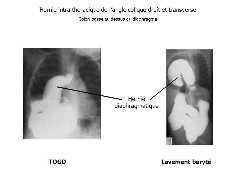 Hernie intra thoracique de l'angle colique droit et transverse
