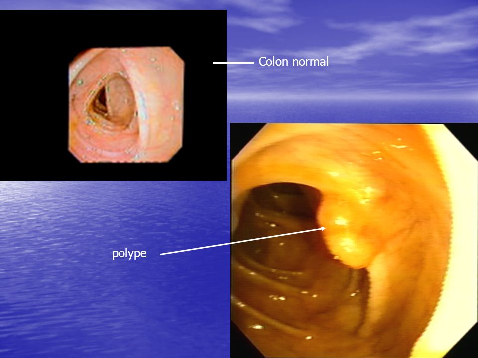 Colon normal polype