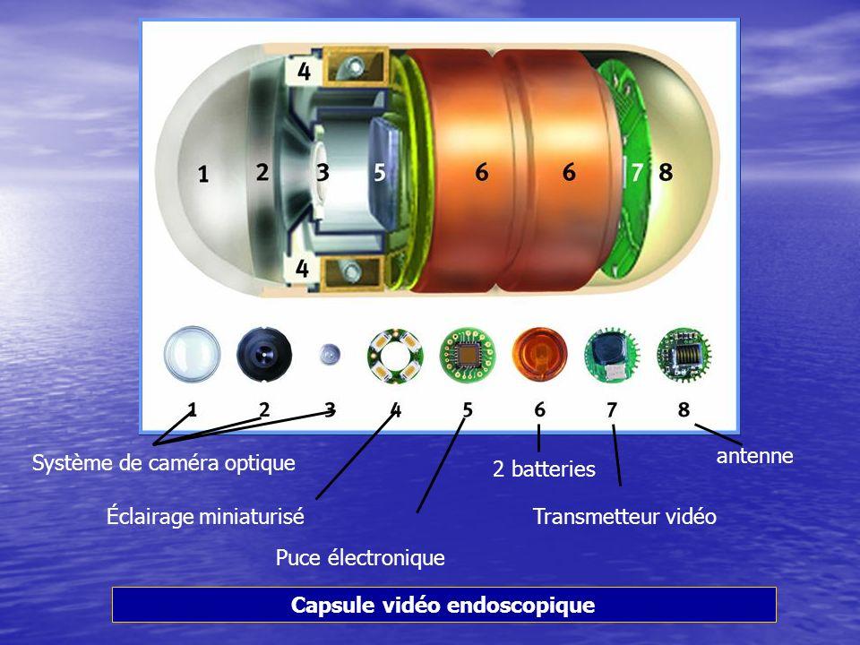 Capsule vidéo endoscopique