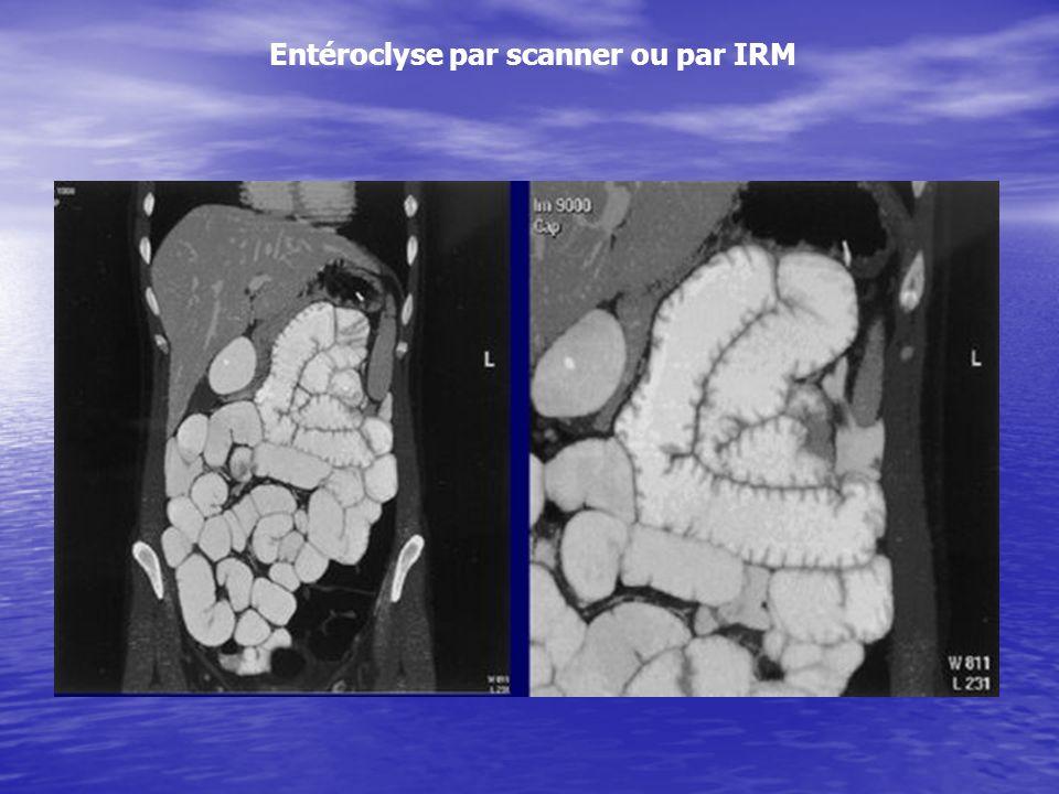 Entéroclyse par scanner ou par IRM