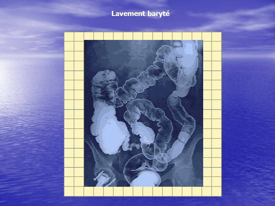 Lavement baryté