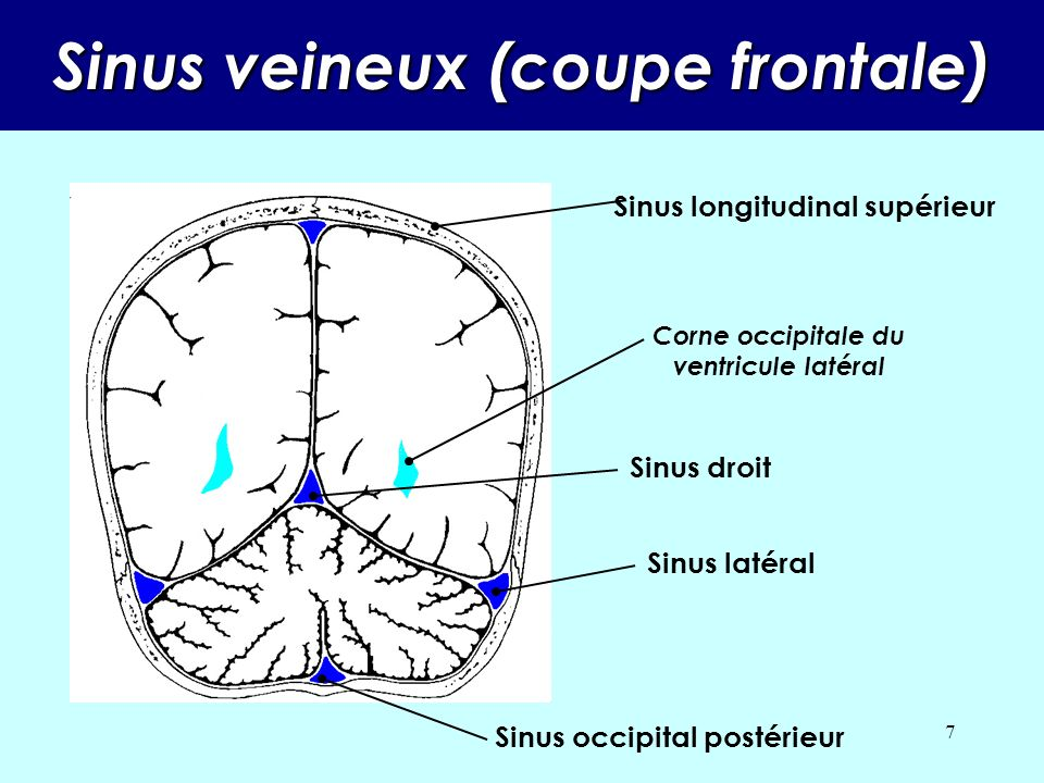 Sinus veineux (coupe frontale)