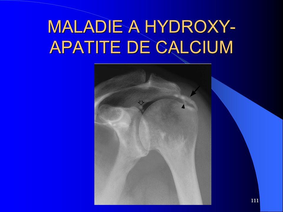 MALADIE A HYDROXY-APATITE DE CALCIUM