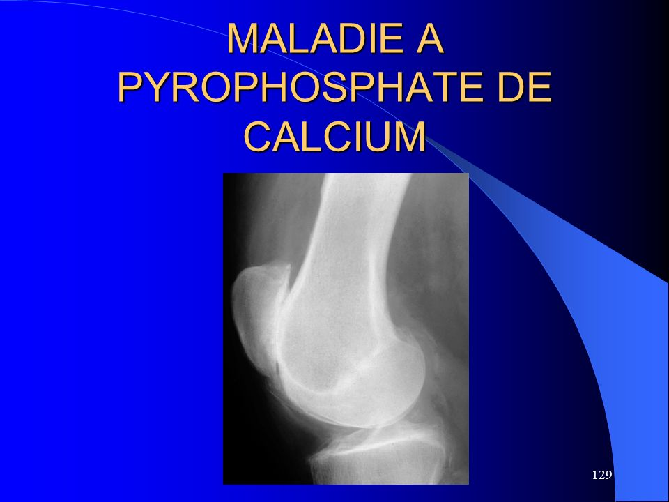 MALADIE A PYROPHOSPHATE DE CALCIUM