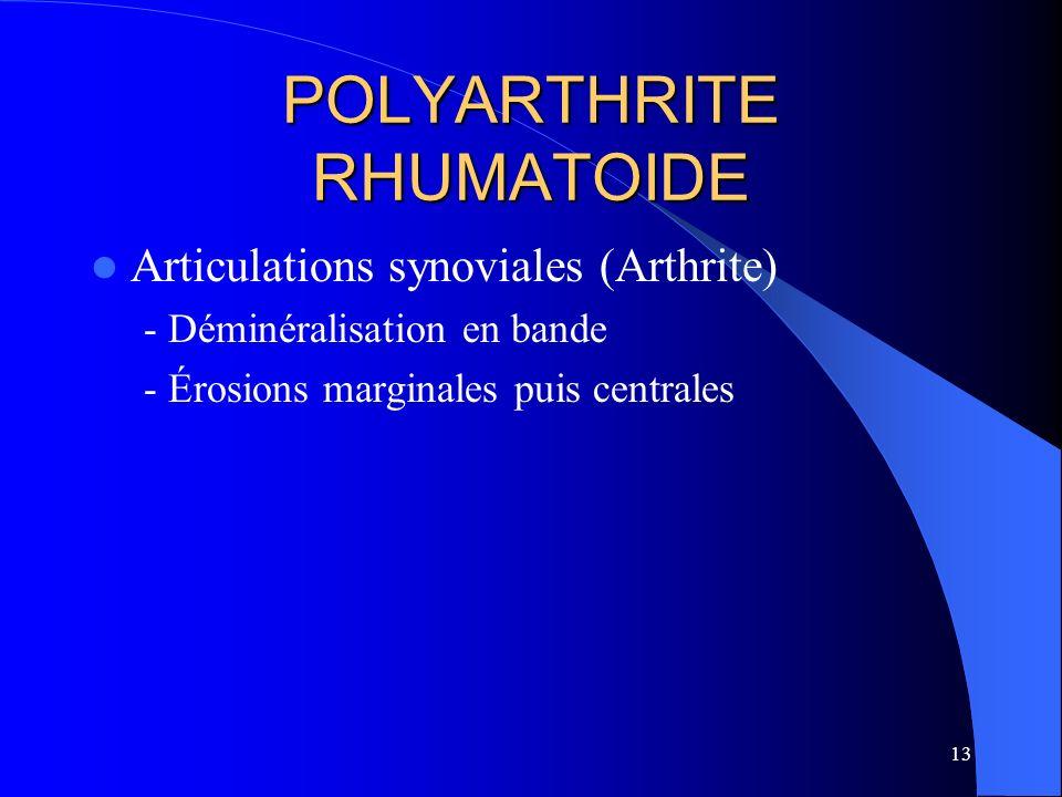POLYARTHRITE RHUMATOIDE