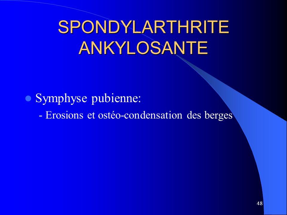 SPONDYLARTHRITE ANKYLOSANTE
