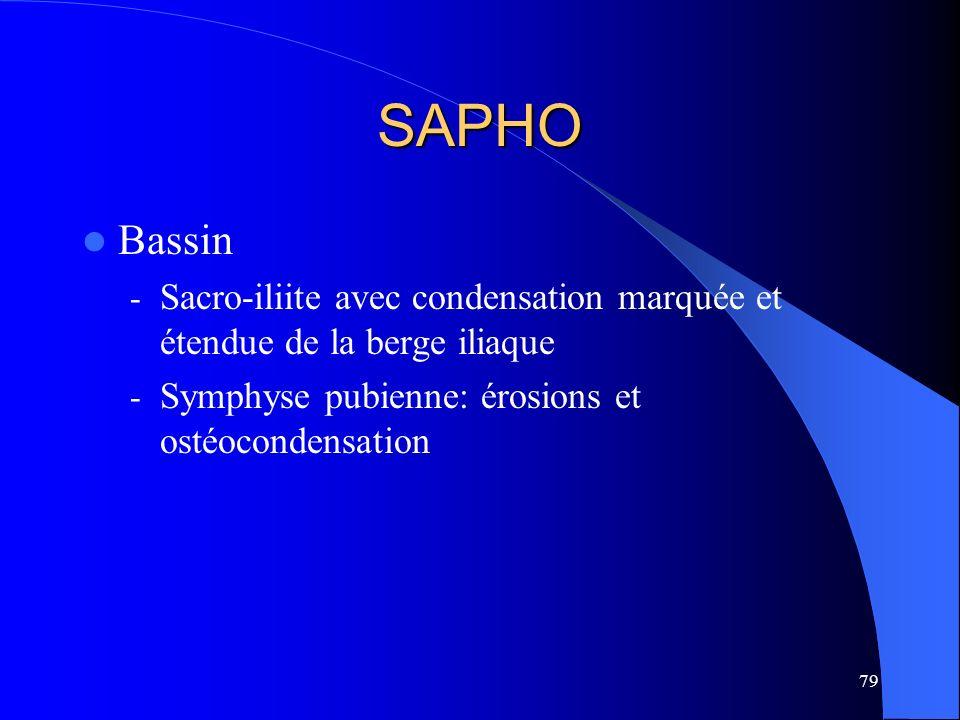SAPHO Bassin. Sacro-iliite avec condensation marquée et étendue de la berge iliaque.