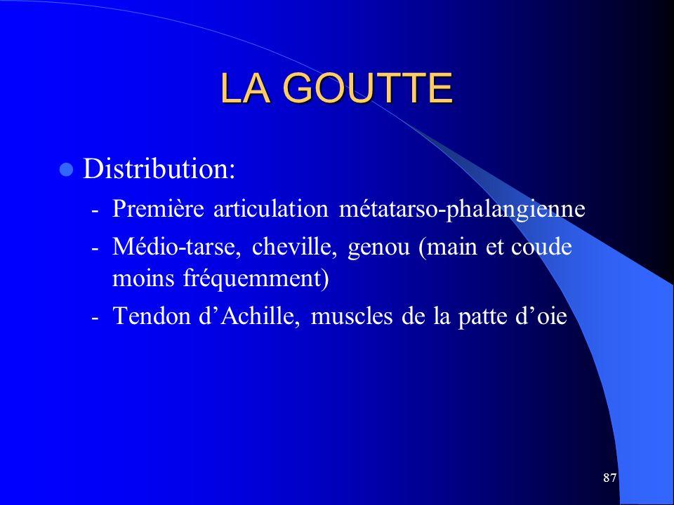 LA GOUTTE Distribution: Première articulation métatarso-phalangienne