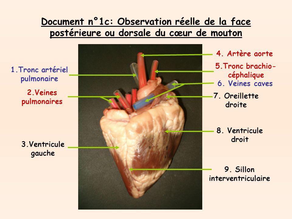 Document n°1c: Observation réelle de la face postérieure ou dorsale du cœur de mouton