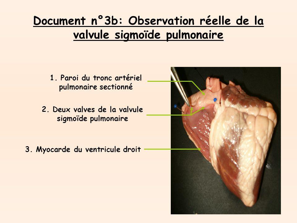 Document n°3b: Observation réelle de la valvule sigmoïde pulmonaire