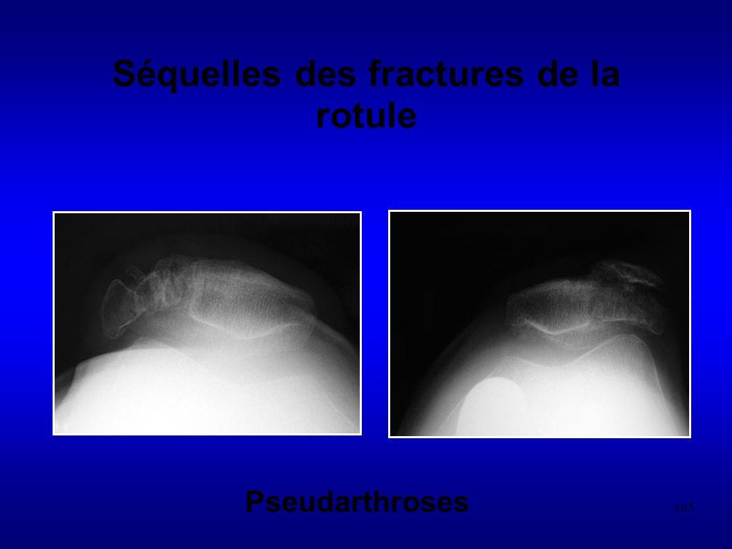 Séquelles des fractures de la rotule