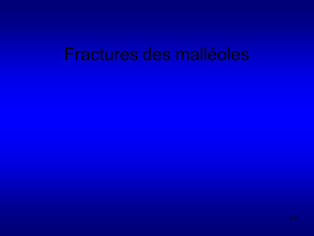 Fractures des malléoles