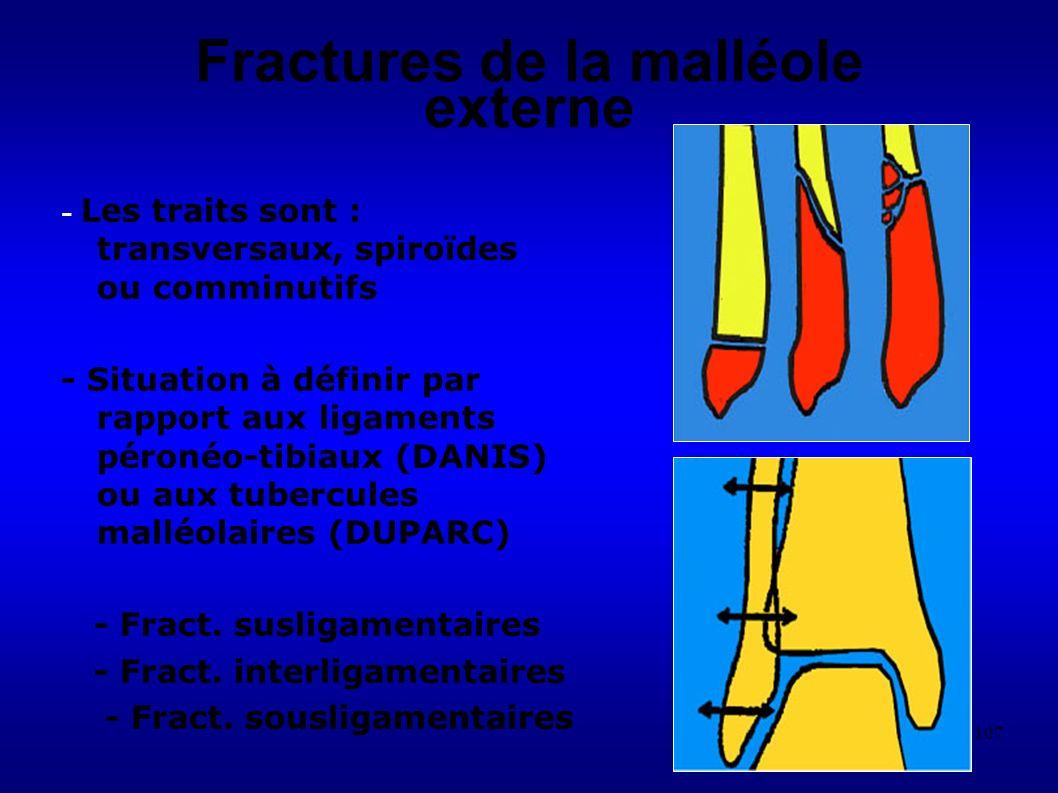 Fractures de la malléole externe