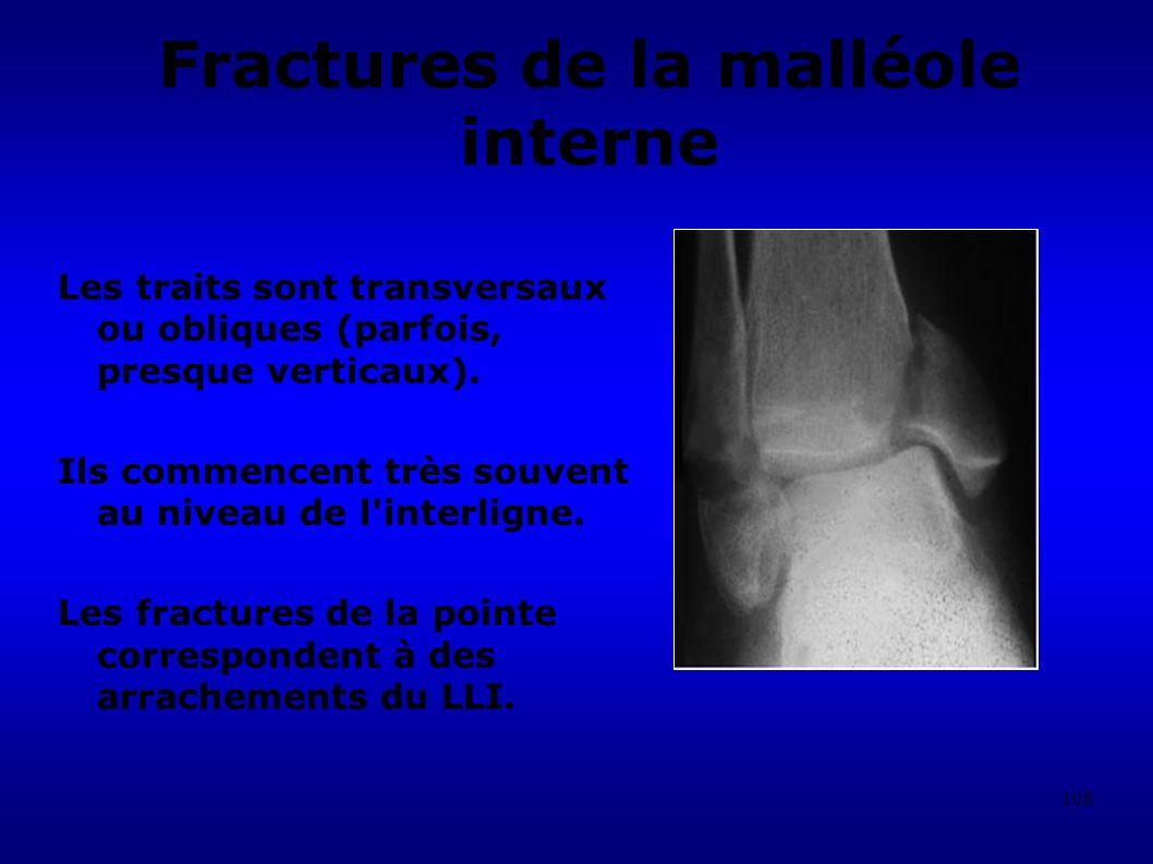 Fractures de la malléole interne