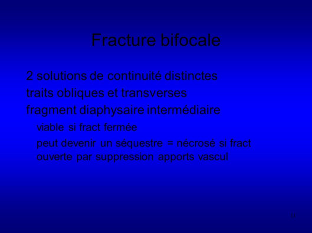 Fracture bifocale 2 solutions de continuité distinctes