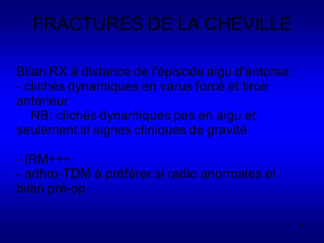 FRACTURES DE LA CHEVILLE